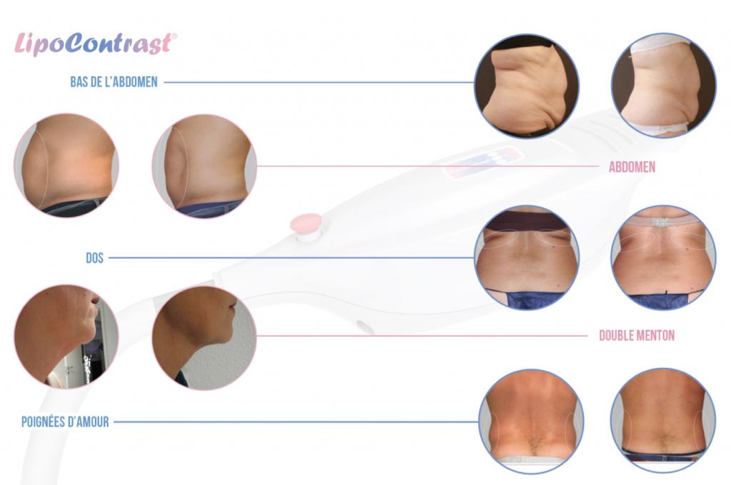 exemples-de-résultats-de-cryolipolyse-ou-lipocryo-alternative-à-la-chirurgie-de-lipoaspiration