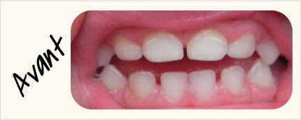 Visuels-Dents-1