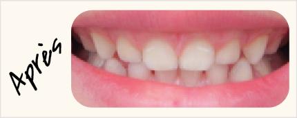 Visuels-Dents-2