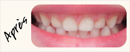 Visuels-Dents-2 (1)