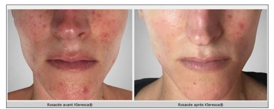 Problèmes de peau : en finir avec le cauchemar de la rosacée